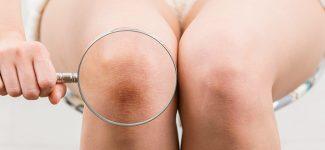anatomia articolazione ginocchio