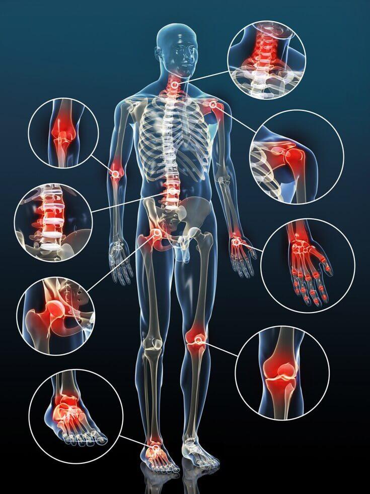 artrite reumatoide nei piedi rimedi naturali