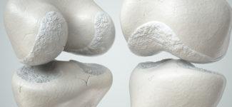 Cartilagine del ginocchio consumata
