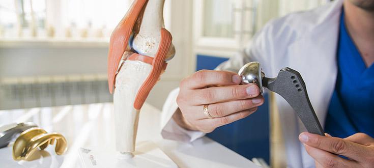 fallimenti protesi