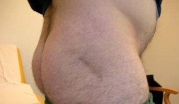 protesi anca post-operatoria cicatrice gluteo