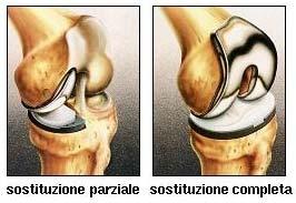 protesi ginocchio totale e parziale