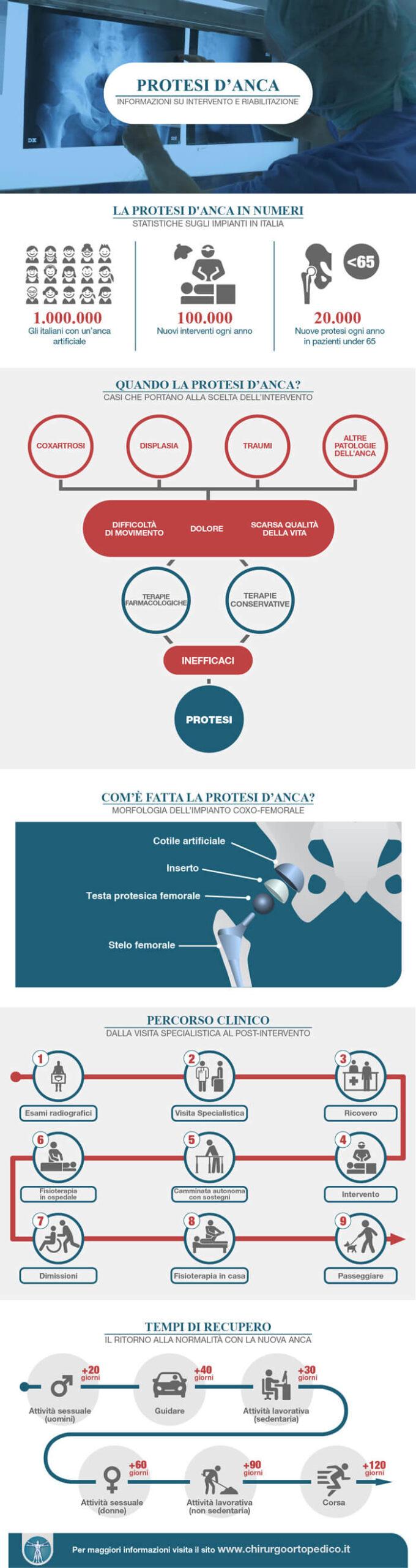 Protesi_anca_infografica