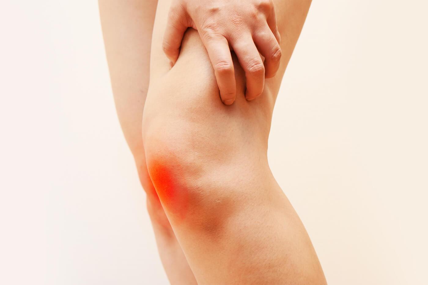 Quando allungo la gamba mi fa male la parte posteriore del ginocchio, la contusione