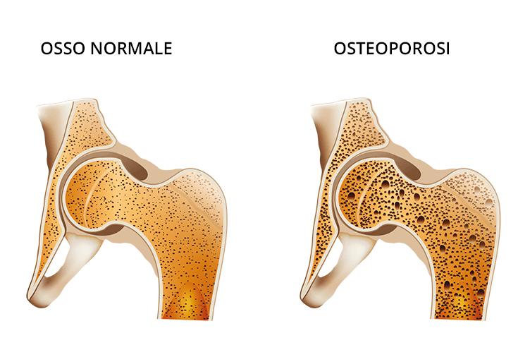 osteoporosi grafica